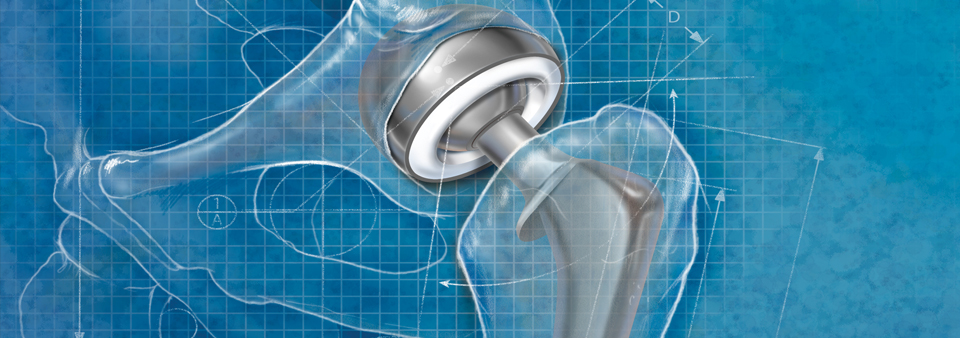 Blueprint Hip Implant Illustration