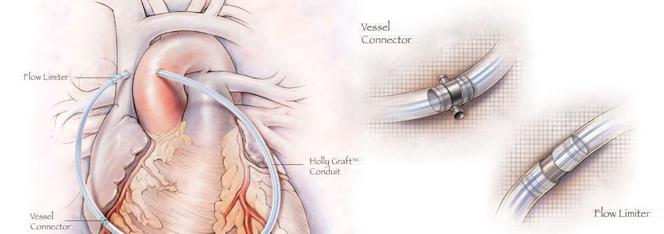Holly Graft Artificial Coronary Artery Graft