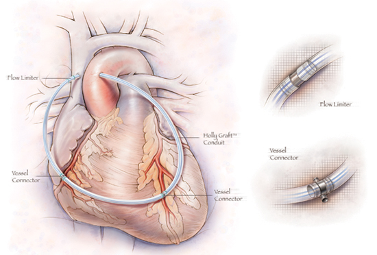 Artificial Coronary Artery Bypass Graft