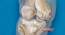 Knee Dislocation Illustration