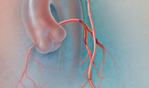 Hybrid Coronary Revascularization