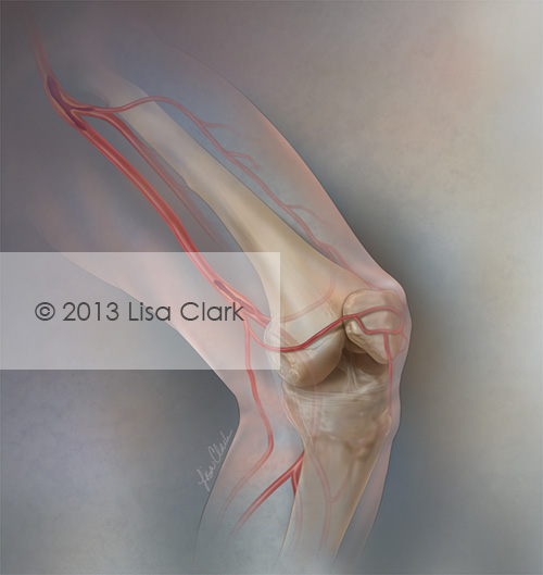 Superficial Femoral Artery Disease Illustration