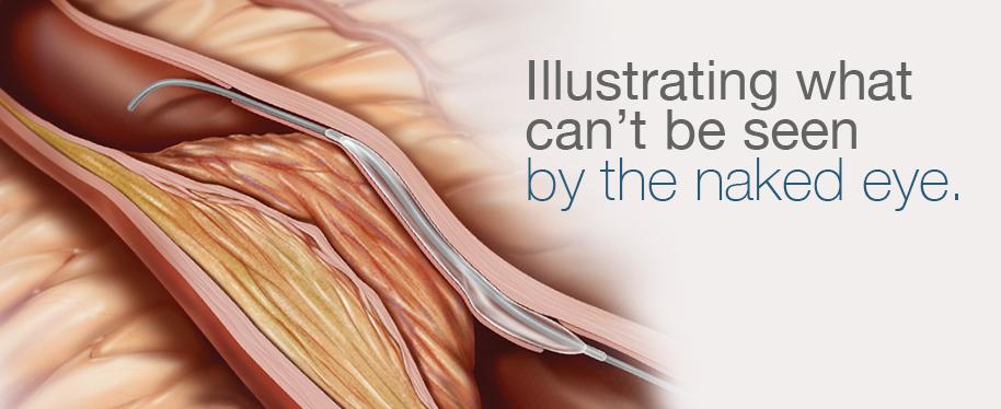 coronary artery illustration