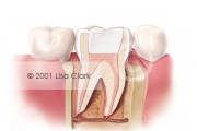 Root Canal: Final Filling (White Material)