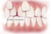 Dental Veneers: Veneers Near Final Position