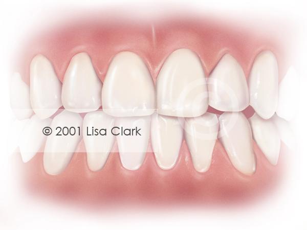 Dental Veneers: Veneers in final position