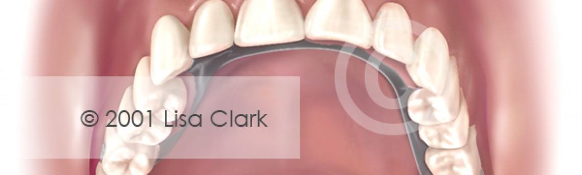 Dentures: Partial Dentures