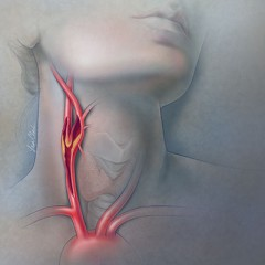 Carotid Stenosis Illustration