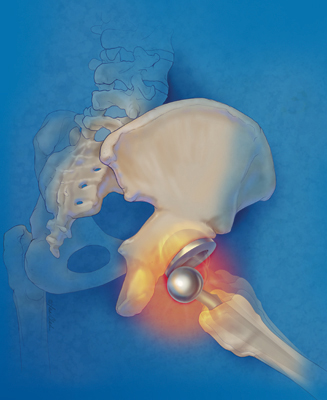 Hip Replacement Failure Illustration