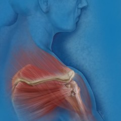 Rotator Cuff Tear Illustration