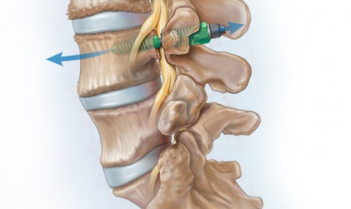 Spinal Stenosis Device