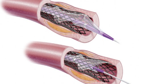 Stent Balloon Removal Issues