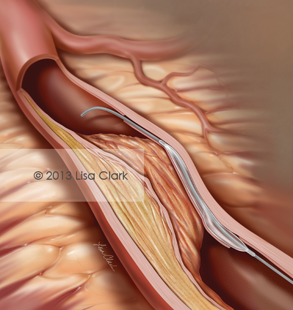 Percutaneous Coronary Intervention Illustration