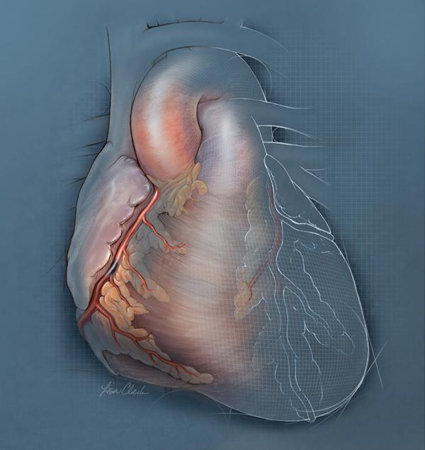Percutaneous Heart Failure Illustration