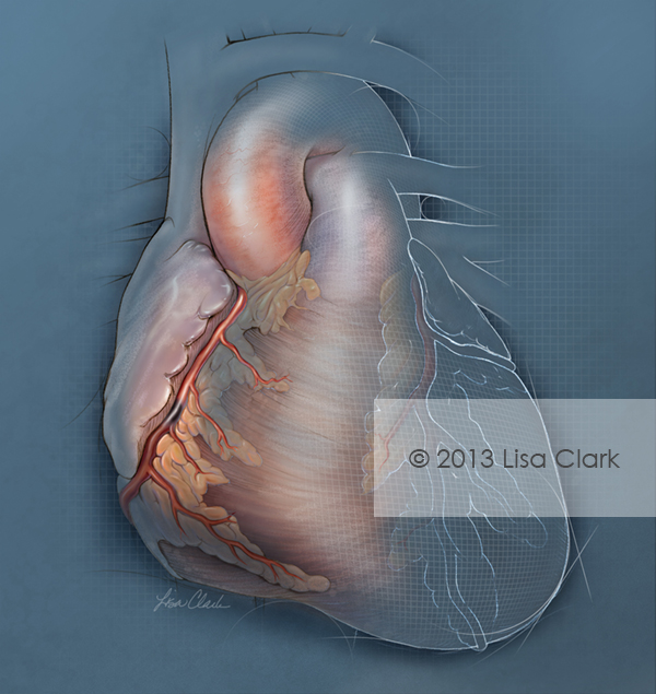 Percutaneous Heart Failure Illustration