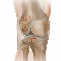 Advanced Osteoarthritis of the Knee