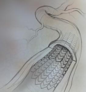 Stent Sketch
