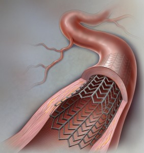 Coronary Artery Stent Color Sketch