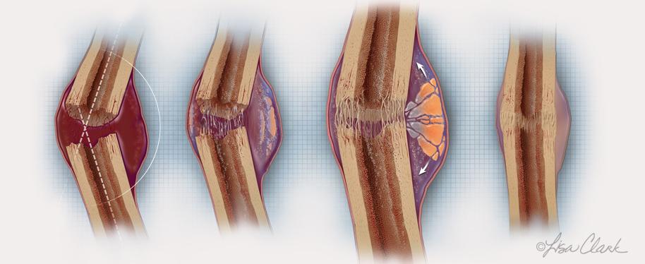 Bone Fracture Healing.  © Lisa A. Clark