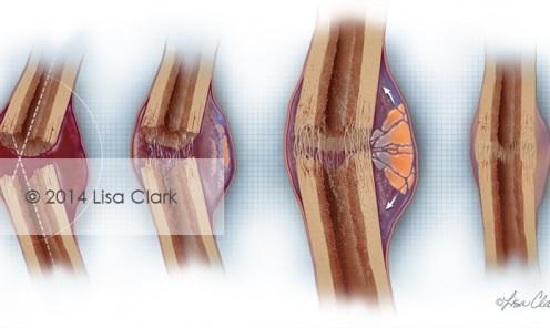 Bone Fracture Healing ©2014, Lisa A. Clark