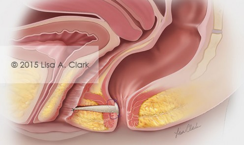 Rectovaginal Fistula Repair with Biologic Plug