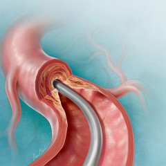 Catheter-Directed Atherectomy | © Lisa A. Clark