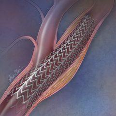 Carotid Artery Stent Art