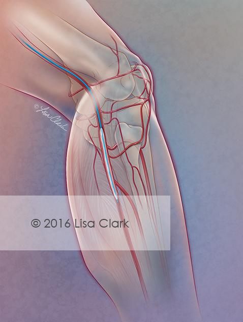 Balloon treatment for Peripheral Artery Disease | © 2016 Lisa A. Clark