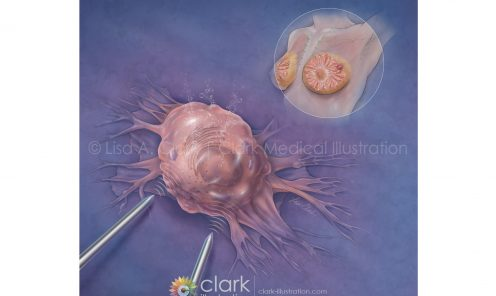 Nano-Pulse Stimulation for the Treatment of Breast Cancer   ©2018 Lisa A. Clark