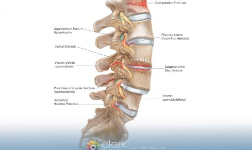 Spinal Conditions   © Lisa A. Clark