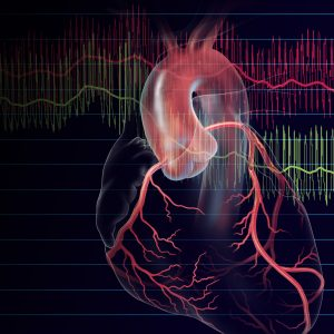 FFR and iFR used to Evaluate Coronary Stenosis | © Lisa A. Clark