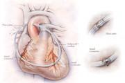 Artificial Coronary Artery Bypass Graft