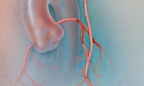 Hybrid Coronary Revascularization