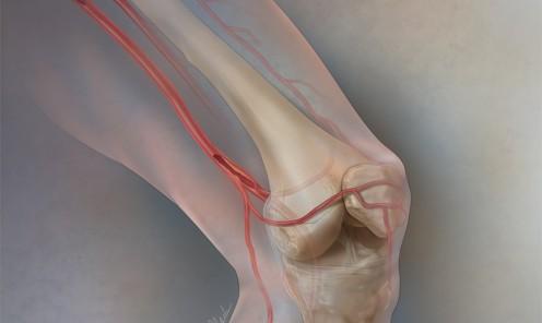 Superficial Femoral Artery Disease