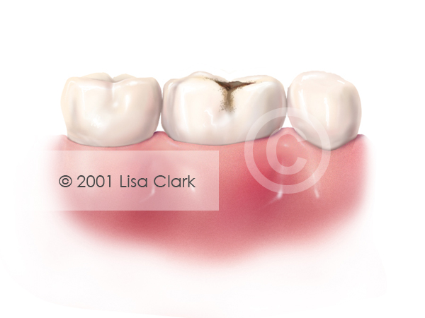 Dental Fillings 2: Progressed Tooth Decay