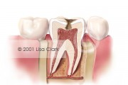 Dental Fillings 2: Progressive Tooth Decay (Cross Section)
