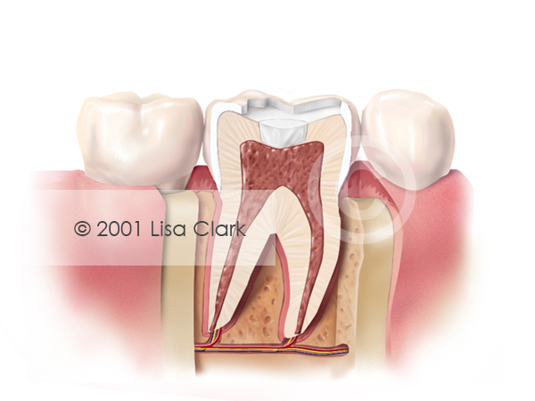 Dental Fillings 2: Basing Material