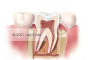 Dental Fillings 2: Tooth Filled with White Filling Material