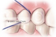 Dental Home Care: Floss Properly Placed Between Teeth