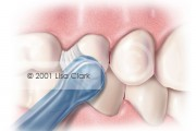Dental Home Care: End Tuft Brush Properly Placed Next to Teeth