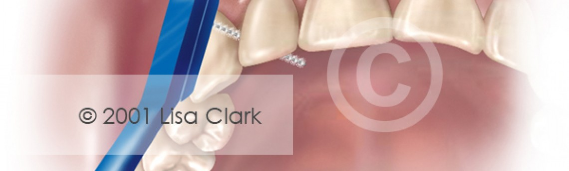 Dental Home Care: Proxi-brush Properly Placed Between Teeth