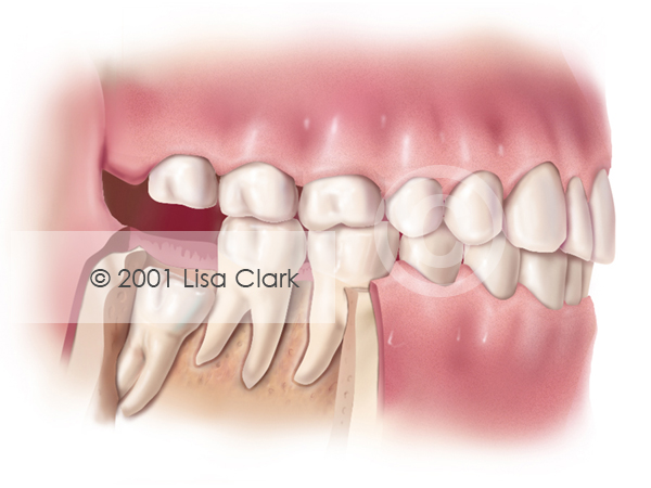 "Impacted Wisdom Tooth: ""Partial Bony"" Impacted"