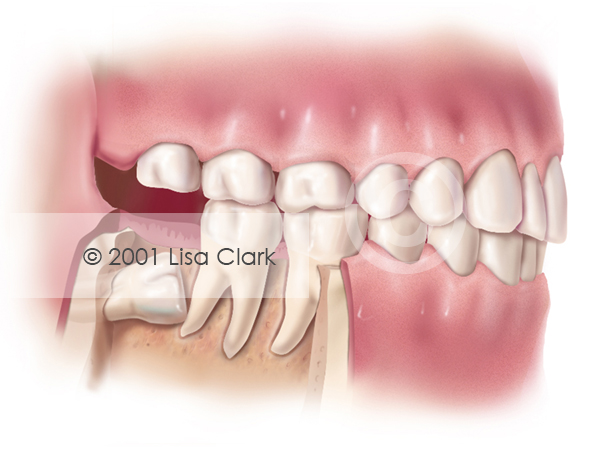 "Impacted Wisdom Tooth ""Full Bony"" or ""Horizontally"" Impacted"