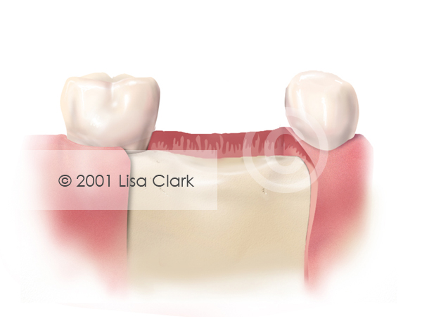 Dental Implant: Good Bone Support Below Gingival Tissue