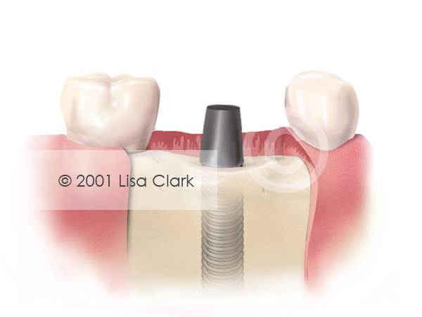 Dental Implant: Implant in Bone