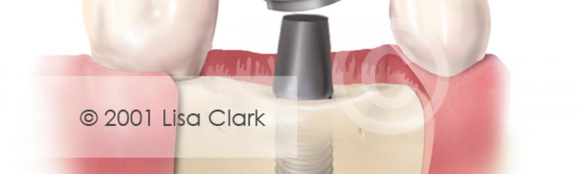 Dental Implant: Crown near Final Position