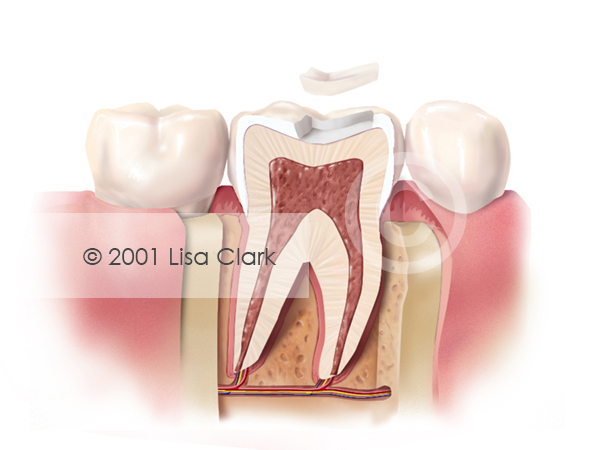 Dental Inlay: Inlay Near Final Position