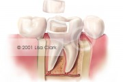 Dental Onlay: Onlay Near Final Position