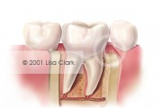 Dental Onlay: Onlay in Final Position
