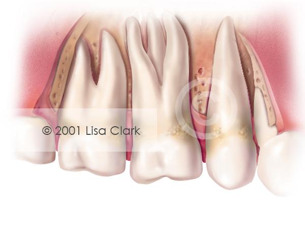 Periodontal 5: Severe Periodontitis